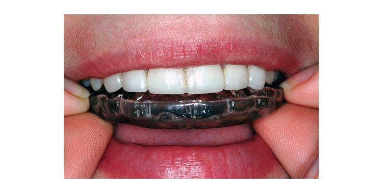 Dental Splints (nightguard)
